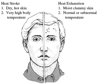 Heat Stroke vs. Heat Exhaustion