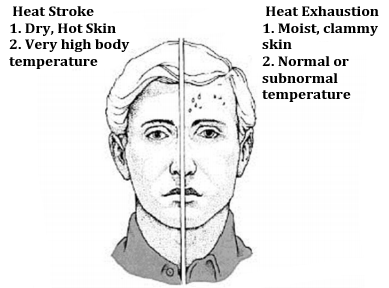 Picture presenting Heat Stroke symptoms: Dry, hot skin and very high temperature, and Heat Exhaustion symptoms: Moist clammy skin and normal or subnormal temperature.