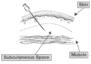 graphic showing a subcutaneous injection
